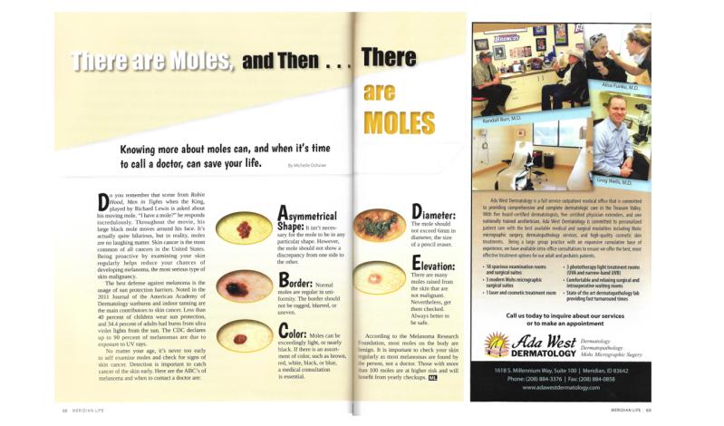 Identifing Moles Clip.PNG